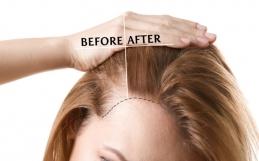 ¿Cómo hacer que mi cabello crezca más rápido de manera natural?